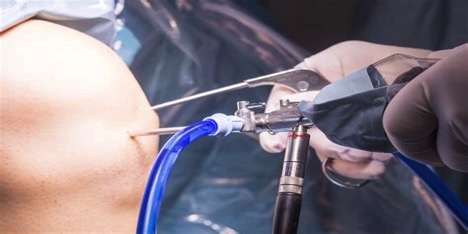 doctor performing minimally invasive knee surgery with arthroscopic stools