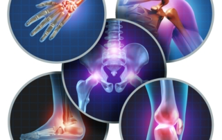 pain and injuries of various joints of the body